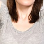 5 Penyebab Keringat Berlebih dan Cara Mengatasinya